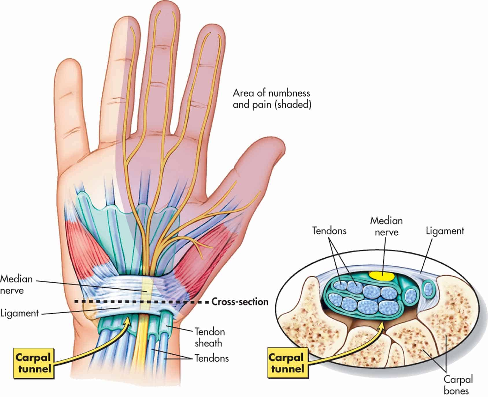 Carpus bones pinterest coloring muscle and hand anatomy - Wrist Anatomy And Carpal Tunnel Syndrome Brace Access Carpal Tunnel Syndrome Cts Monardofo Image Collections