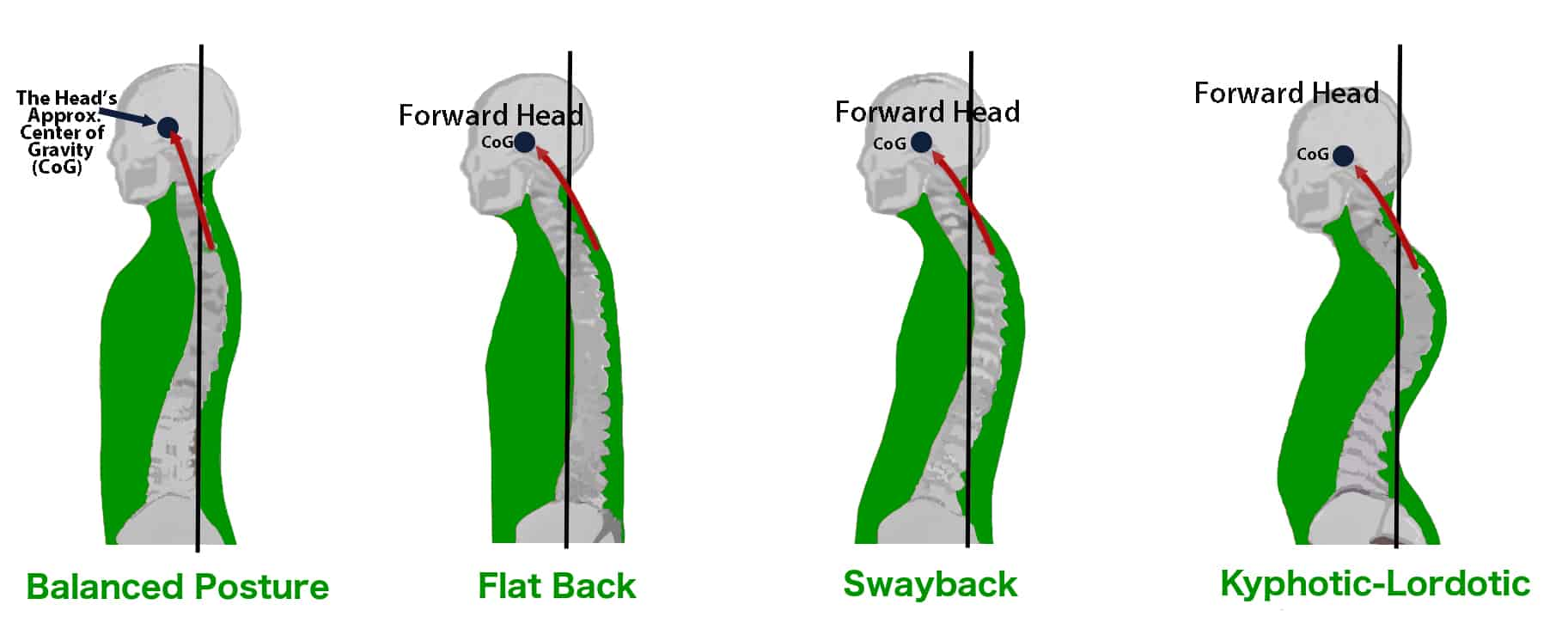 how to develop good back posture