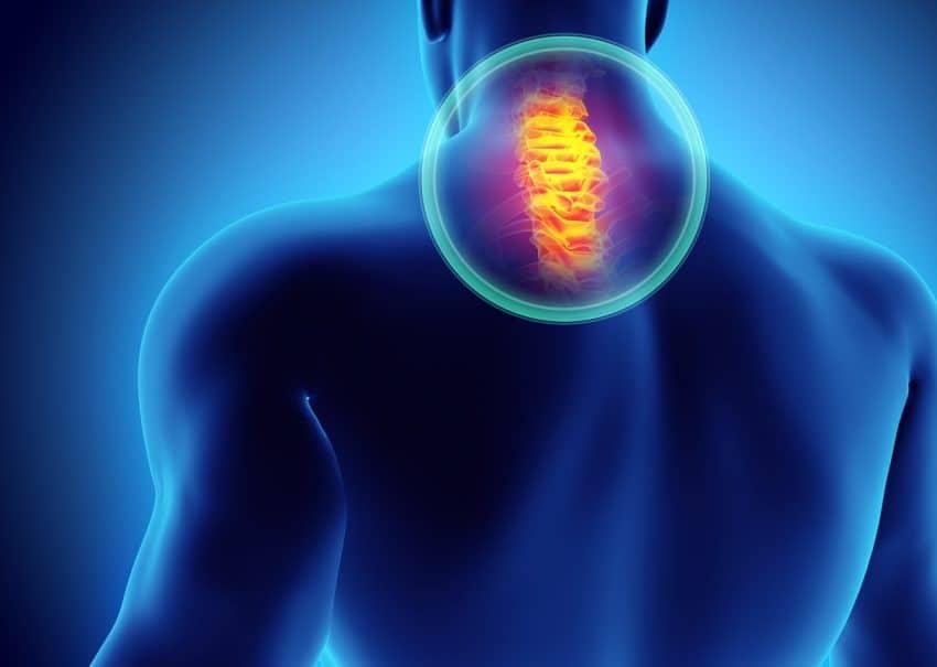 neck pain anatomy illustration