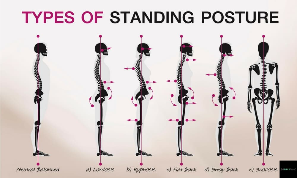 Types of Posture The Back Clinic
